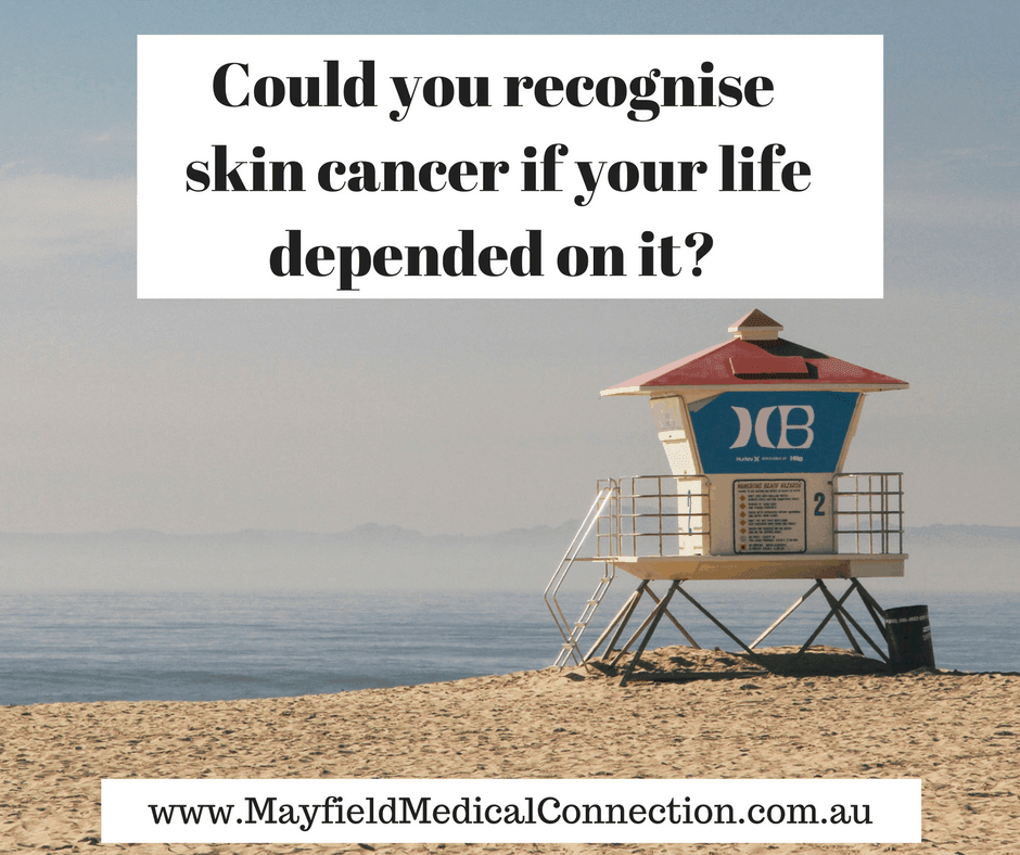 Could You Recognise A Skin Cancer If Your Life Depended On It?